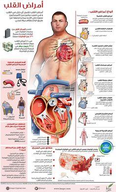 أمراض القلب (انفوجرافيك)