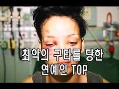 최악의 구타를 당한 스타 TOP!!