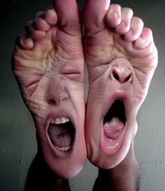Why does bilateral Morton's neuroma occur? What are the factors that lead to Morton's neuroma on both feet? What causes Morton's neuroma? Foto Fun, Foot Pics, Sore Feet, Nasu, Nurse Humor, Photo Manipulation, Laughter, It Hurts, Funny Pictures