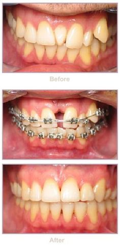 Do you think orthodontics is both fun and amazing? Dentaltown - Patient Education Ideas