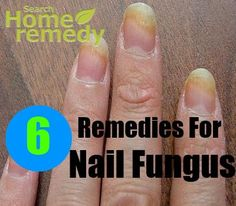 How To Use Hydrogen Peroxide For Nail Fungus - Step By Step Guide ...