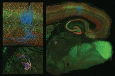 3D reconstruction of thalamocortical circuits