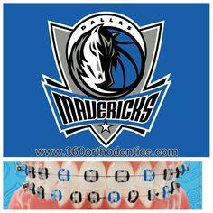 Dallas Mavericks - Color Braces Layout NBA Fans it's GameTime  www.360orthodontics.com