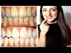 La saggezza Spin Brush Sbiancamento BATTERIA ELETTRICA spazzolino da denti adulto Igiene Orale