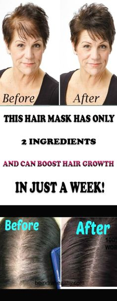 THIS HAIR MASK HAS ONLY 2 INGREDIENTS AND CAN BOOST HAIR GROWTH IN JUST A WEEK!