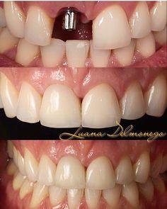 Prótese sobre implante no 1.1 e faceta em porcelana no 2.1 .Caso lindo enviado pela @draluanadelmonego . . . . . #Odontologia#odonto#cirurgiaodentista#dentista#dentistas#dentist#dentistry#odontolove#odontología#odontotologo#odotologos#odontology#odontolovers#odontoporamor#oralhealth#odontolove#dente#dentes#dents#teeth#tooth#odontoemdicas#sorriso#smile#odontoemdicas#protese#protesesedentaria#implante#faceta#esteticadental by odontoemdicas Our Dental Services Page…