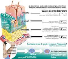 Grands brûlés:le défi de la peau de remplacement. Belle #infographie sur la profondeur des #brulures (le Figaro Santé)