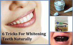 6 Tricks For Whitening Teeth Naturally