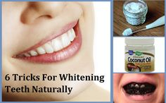 6 Tricks For Whitening Teeth Naturally