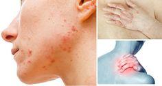 7 signos de que tienes demasiadas toxinas en el cuerpo