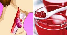 Как оздоровить щитовидку! Напиток, который способен предотвратить рак и другие заболевания