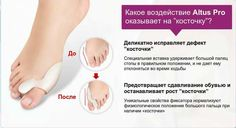 Косточка на ноге возле большого пальца