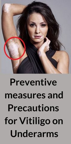 List of preventive measures and precautions If you have got vitiligo  patches on any other body 434e0e93b43d