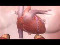 Infarto: saiba como acontece um ataque cardíaco - YouTube