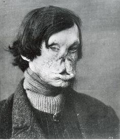 Tuberous leprosy, 1895