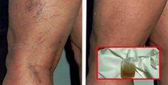 O nervo ciático normalmente começa na parte mais baixa das costas, então se espalha pelas nádegas e corre em direção à coxa e à pern
