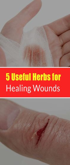 5 Useful Herbs for Healing Wounds # Without Side Effects