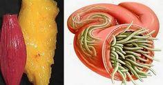 Для того, чтобыустранитьжировые отложения, специалисты предлагают применять принципы правильного питания, так как процесс сжигания жира зависит от многихисточников энергии, [...]