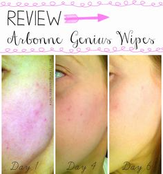 REVIEW | Arbonne Intelligence Genius Nightly Resurfacing Wipes