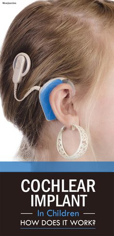 Information on Cochlear Implants