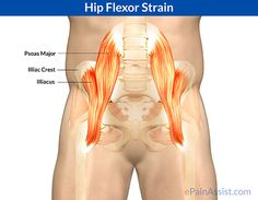 Hip flexor strain is also called as psoas strain, hip flexor tear, hip flexor injury, iliopsoas strain, or pulled hip flexor. Learn about the causes, symptoms, treatment, physical therapy, and exercises for strained hip flexor.