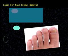 Laser for nail fungus removal - Nail Fungus Remedy. You have nothing to lose! Visit Site Now