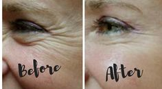 This could be your before and after! #TheBellissimaWay