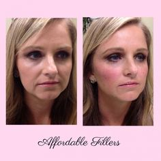 "gallery before and after images are actual unedited patient photos. The ""after"" images are taken just minutes after filler treatment. Under Eye Fillers, Cheek Fillers, Botox Fillers, Dermal Fillers, Mini Face Lift, Instant Face Lift, Wrinkle Filler, Eye Wrinkle, Eye Dermal"