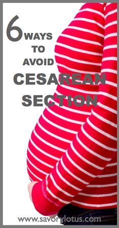 6 Ways to Avoid a Cesarean Section - many of the surgical births that happen are unnecessary and avoidable. Pregnancy Labor, Pregnancy Health, Women Pregnancy, Breech Babies, Just In Case, Just For You, My Bebe, After Baby, Everything Baby