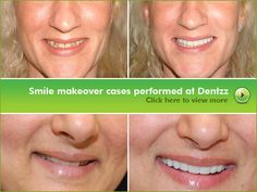 Book your appointment with Dentzz right here: http://dentzzdental.com/online-appointment.html