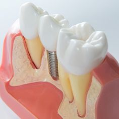 The Exciting Truth About Dental Implants