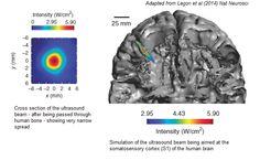 Is Ultrasonic Brain Stimulation The Future?