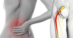 Stretches to relieve sciatic nerve pain. Symptoms of sciatica. Where is the sciatic nerve? What causes inflammation of the sciatic nerve? How to relieve sciatic nerve pain naturally Severe Lower Back Pain, Middle Back Pain, Neck And Back Pain, Sciatic Pain, Sciatic Nerve, Nerve Pain, Back Pain Symptoms, Causes Of Back Pain, Health Tips