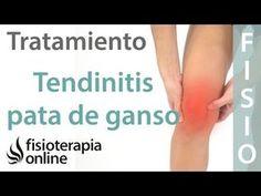 Tratamiento de la tendinitis de la pata de ganso con ejercicios, auto-masajes y estiramientos | Fisioterapia Online