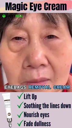 Brown Spots On Skin, Skin Spots, Anti Aging Skin Care, Natural Skin Care, Lotion For Oily Skin, Best Skin Care Regimen, Anti Ride, Magic Eyes, Men Makeup