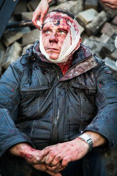 A bandaged man after another night of violent confrontations in Kiev.