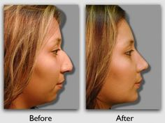 Miami Institute – Before and After #Rhinoplasty #Plastic #Surgery