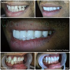 Hollywood Smile Makeover with Zirconium Crowns to close the gaps, correct the recessed tooth and move the central midline into the right position. Porcelain Crowns, Dental Veneers, Smile Makeover, Dental Bridge, Smile Design, Dental Implants, Tooth, Hollywood, Teeth