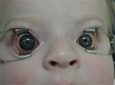 Child with right congenital glaucoma and buphthalmos.