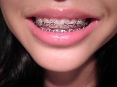 What are Lingual Braces Healthy, white teeth are an essential factor in individual aesthetics. The brightening process of white teeth is the therapy that dentists used usually in recent years. Teeth w Cute Girls With Braces, Cute Braces Colors, Dental Braces, Teeth Braces, Dental Care, Pink Braces, Braces Retainer, Lingual Braces, Braces Tips