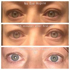 Eye Aspire