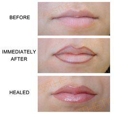 Semi-permanent lip liner. www.deeperaesthetics.co.uk
