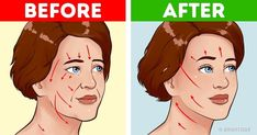 """7 Effective Exercises to Get Rid of Wrinkles in 12 Minutes """"Facebuilding"""", or training of the face, helps the skin to become more elastic and aligned. Beauty Hacks For Teens, Face Exercises, Floor Exercises, Stretching Exercises, Face Yoga, Beauty Tips For Face, Hair Beauty, Prevent Wrinkles, Do Exercise"""