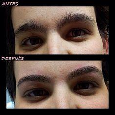 Antes y después cejas