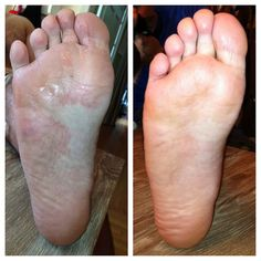 How I used essential oils to rid my husband of a stubborn case of athletes foot in just 5 days!   dreawood.com