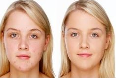 Want to get rid of Pimples ? Try Natural Homeopathic Medicines for Acne