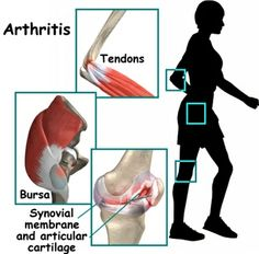 HOW TO TREAT ARTHRITIS USING HOME REMEDIES
