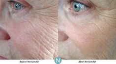 Imagine what Nerium can do for your skin!  http://dmcarrere.theneriumlook.com