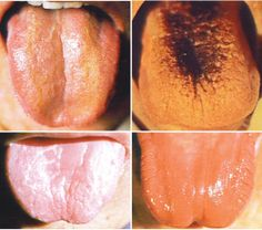 A healthy tongue is slightly moist, pink, and has a very slight white coat. It is flexible, not swollen, and without any teeth marks on the sides. -The shape indicates the state of the blood and …