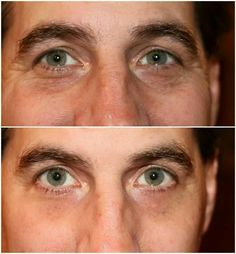 Instantly Ageless works on men too! Amazing results!!! www.lustriousbeauty.jeunesseglobal.com